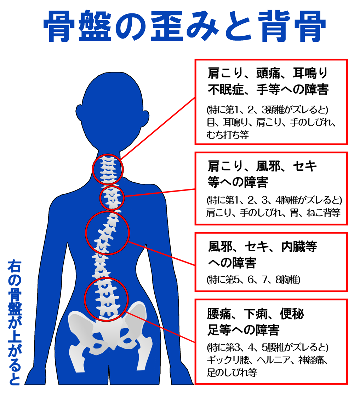 骨盤のゆがみと背骨図