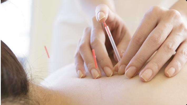 WHO(世界保健機構)が認めている鍼灸治療の適応症イメージ