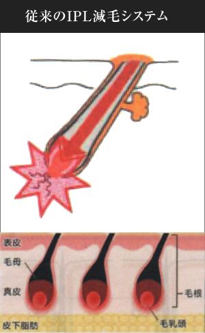従来のIPL減毛システム