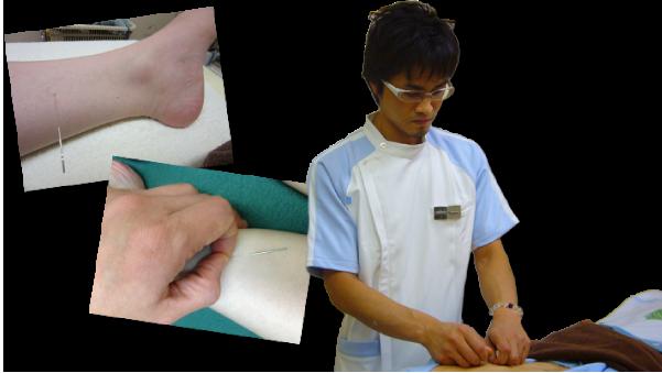 鍼灸はどんな病気に効果が期待できるのでしょうかイメージ